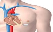 Le stimulateur cardiaque  Nanostim à  la place du pacemaker
